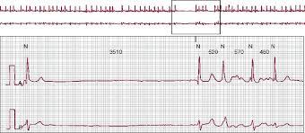 Bradyarrhythmias and Conduction Blocks