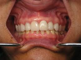 Dental Front Desk Jobs In Maryland by Front Teeth Dental Implant Samples Ramsey A Amin Dds