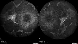 Figure 2 Fundus Autofluorescence Showing Marked Well Defined Scalloped Areas Of Retinal