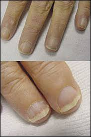 Toenail Separated From Nail Bed by Nail Abnormalities Clues To Systemic Disease American Family