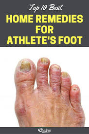 The 25 best Athlete s foot ideas on Pinterest