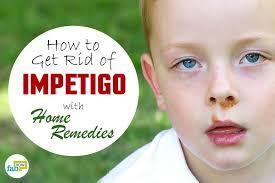 How to Get Rid of Impetigo with Home Reme s