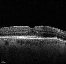 Patients With Epiretinal Membranes Such As Seen Here Who Have Preoperative Vision Of 20 40 Or Better May Not See Any Improvement After Cataract Removal