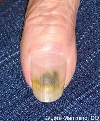 Green Nail Syndrome American Osteopathic College of Dermatology