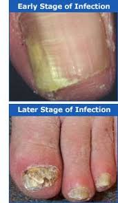 Infected Fingernail Bed by Keep Your Toenails Healthy This Summer Tips For The Millions Of