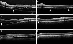 Evolution Of Outer Retinal Folds Occurring After Vitrectomy For