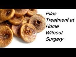 Piles Treatment at Home without Surgery Bawaseer ka ilaj