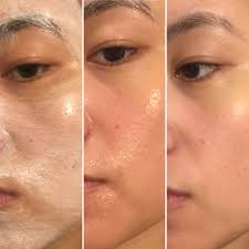 Pumpkin Enzyme Peel Before And After by Elaine U0027s Beauty Reviews Oskia London Anti Ageing Award Winning Masks