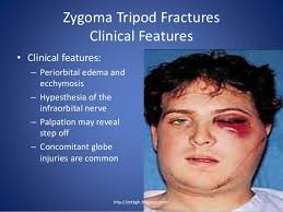 Fracture Orbital Floor Treatment by 14 Orbital Floor Fracture Symptoms Diseccion Odontomike