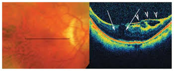 The Longitudinal B Scan OCT View Reveals Mild Outer Retinal Layer Dehiscence In Fovea White Arrows With Tractional Epiretinal Membrane