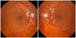 Differential Diagnosis Hypertensive Retinopathy