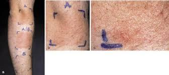 Acta Dermato Venereologica Prevention of Polymorphic Light