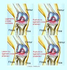 douleur au genou et gonflement traitement et exercices