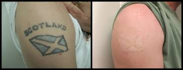 ReThink The Ink Tattoo Removal Denver CO Las Vegas