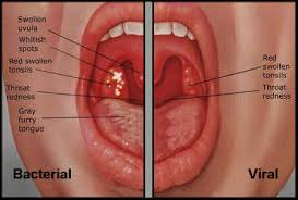 How to Cure Sore Throat Causes Symptoms Reme s and Medication