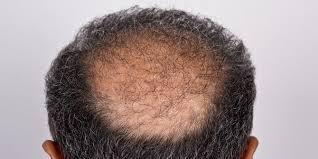 Ceko Negara Dengan Pria Botak Terbanyak Di Dunia
