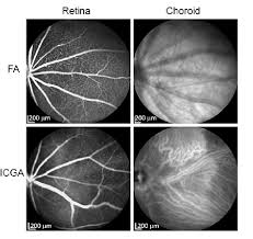 Comparison Of FA And ICGA In Imaging Mouse Retinal Choroidal