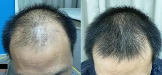 Penumbuh Rambut Rontok Botak