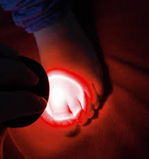 Infrared Therapy Lamp Canada by Light Therapy Improves Arthritis Dramatically Red Light Man