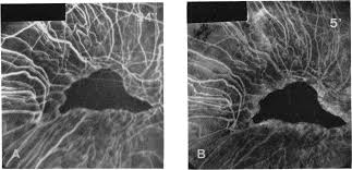 Differential Diagnosis Between The Primary Total Choroidal Vascular Atrophies