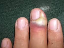 Infected Fingernail Bed by Paronychia Treatment Pictures Symptoms Causes