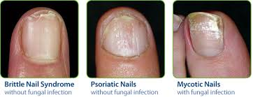 Damaged Nail Treatment For Weak Brittle or Cracked Nails nuvail