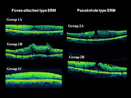 Assessment Of Macular Function For Idiopathic Epiretinal Membranes
