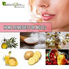 Top 10 Home Reme s For Moles Effective Measures