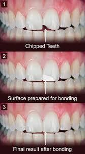 Dental Bonding – Livingston NJ Short Hills NJ West Orange NJ