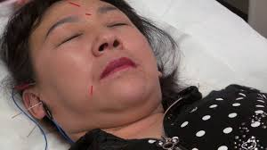 How Acupuncture Can Repair Wrinkles, Lift Eye Bags, And Help Reverse The  Effects Of Aging Chtalksports Coupon Code Plexaderm Rapid Reduction Serum 3 Bottles New Advanced Formula Free Worldwide Shipping Glamified Makeup Coupons Promo Discount Sudden Change Undereye Firming Exclusive 10 Off Coupon Code Plxret1 Valid On Any Sheer Science Best Buy Student Open Box Louie Spence Mterclass Hng Dn N Tp V Kim Tra Ha Hc 1 27 Off Premier Look Codes Wethriftcom Apps To Help You Find The Best Deals For Holiday Shopping Fox17 Sunspel Las Vegas Groupon Buffet Eyes Cream Plus Sale In Outside Twitter Yes Really Works You Can Try