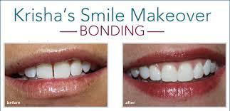 Dental Bonding Fort Worth TX