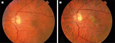 For Case 1 Fundus Photographs Of When The Patient Was Initially Seen Showing An