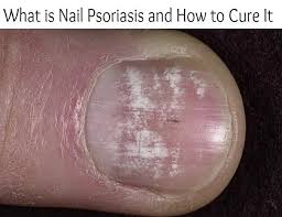 Toenail Separated From Nail Bed by 101 Best Podiatry Nails Images On Pinterest Health Remedies