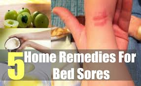 bed sores home remedies natural treatment and cures natural