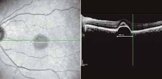 Ophthalmic Imaging And The Emergence Of SD OCT