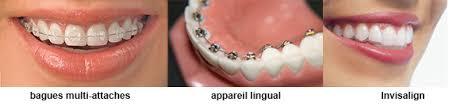 faq combien coûte un traitement orthodontique