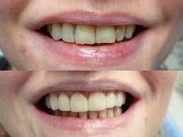 Dental Bonding in Woodland Hills CA