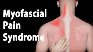 Pelvic Floor Tension Myalgia Physical Therapy by Myofascial Pain Syndrome And Trigger Points Treatments Animation
