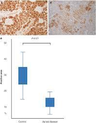 100 Itai Itai Itai 4 Novel Pathological Study Of Cadmium Nephropathy Of Itai