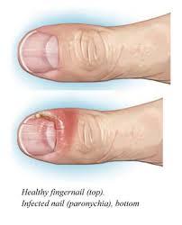 paronychia nail infection