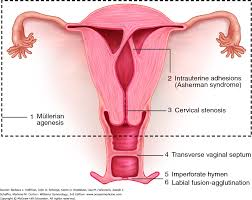 Uterus Lining Shedding Without Blood by Amenorrhea Williams Gynecology 3e Accessmedicine Mcgraw