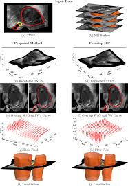Uterine Lining Shedding After C Section by Mapping And Characterizing Endometrial Implants By Registering 2d