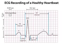 rr interval normal range qt knowledge base diagnosis evaluation