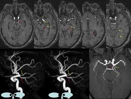 Anterior Choroidal Artery