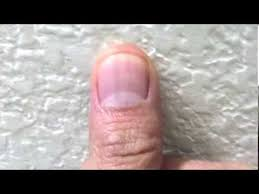 black line under finger nail cancer heart disease or vitamin