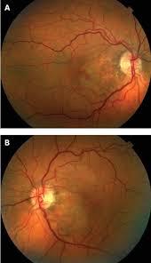 Figure 1 Colour Fundus Photos Before Treament Revealing Retinal Pigment Epithelium Changes Mild Exudates And