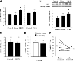 fto is increased in muscle during type 2 diabetes and its