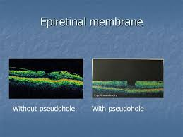 48 Epiretinal Membrane Without Pseudohole With
