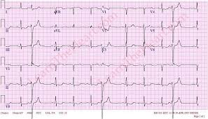 Premature Ventricular Contractions PVCs Example 1