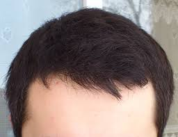 Minoxidil Shedding Phase Pictures by Hair Loss Help Text Topic